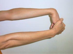 テニス肘のストレッチの写真|入間市しかくら整骨院